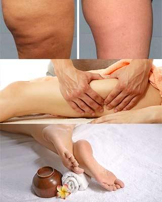 bacak çatlakları neden olur, nasıl önlenir? 9