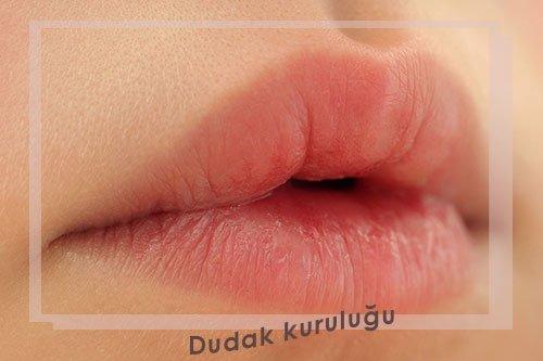 dudak kuruluğu 8