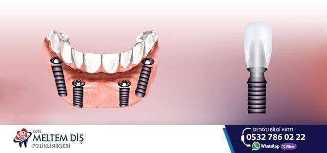 i̇mplant diş tedavisinde deneyim, fiyat ve kalite orantısı 1