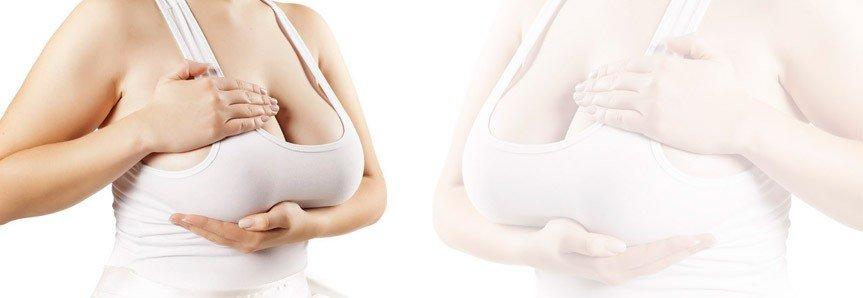 meme küçültme ameliyatı sağlık ve yaşam kalitesini artırıyor 1