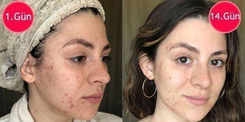alkol cilde zararlı mı? i̇şte gerçek deney 1