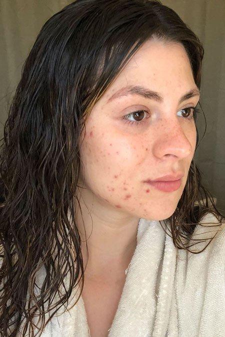 alkol cilde zararlı mı? i̇şte gerçek deney 3