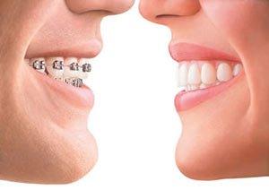 zirkonyum ve ortodonti 2