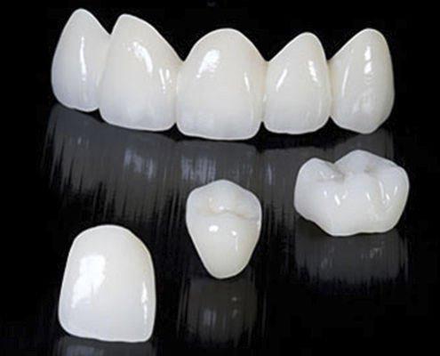 zirkonyum ve ortodonti 1