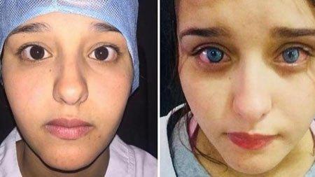 evet mümkün: göz rengini değiştirme ameliyatı 1