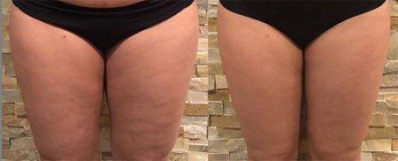selülit tedavisi ve thermage ile vücut gençleştirme 3