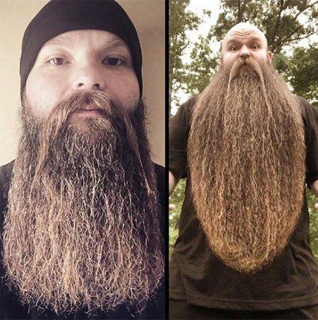 saç dökülmesinde biotin kullanımı 1