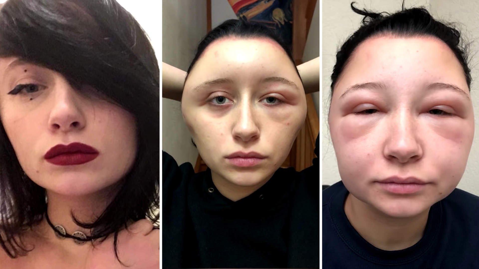 saç boyası alerjisi-yüz şişmesi 9