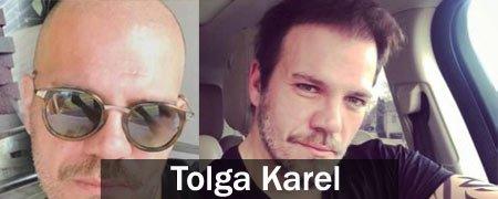 protez saç kullanan erkek ve bayan ünlüler 1