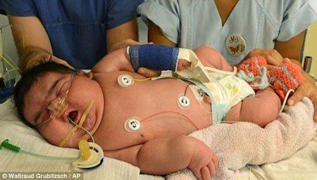 i̇ri bebek sendromu nedir 3