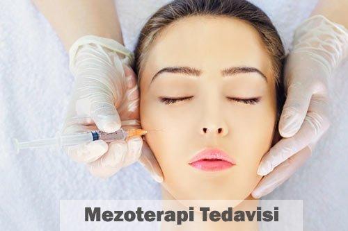 mezoterapi tedavisi nedir - estetik mezoterapi 10