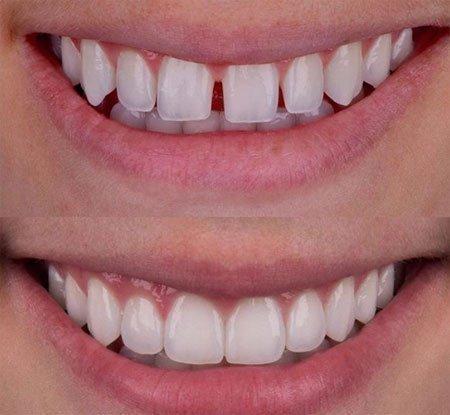 Diş İmplant Tedavisi