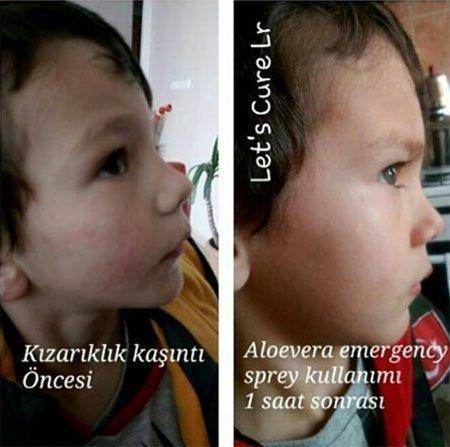 çocuklar için cilt maskesi tarifinde 3 kural 1