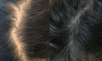 saç dökülmesi nasıl önlenir? 17