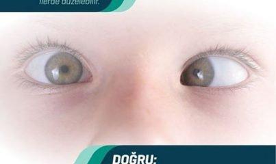 bebeklerde göz kayması nedir? 2
