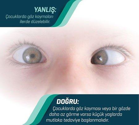 bebeklerde göz kayması nedir?