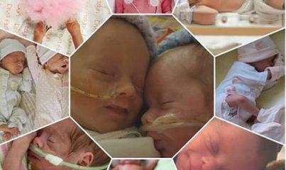 prematüre bebek nedir? 7
