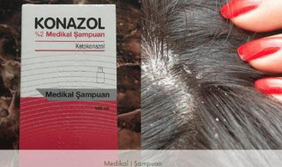 konazol şampuan kullananlar - ne işe yarar? 7