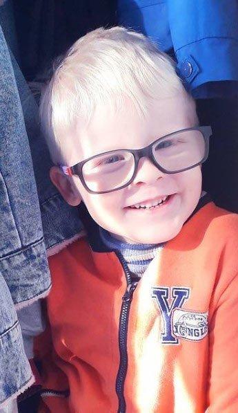 beyaz saçlı hastalığı (albinizm)